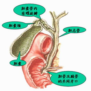 如何选择胆囊结石的治疗方法 原创作品 仁者医术 搜狐博客